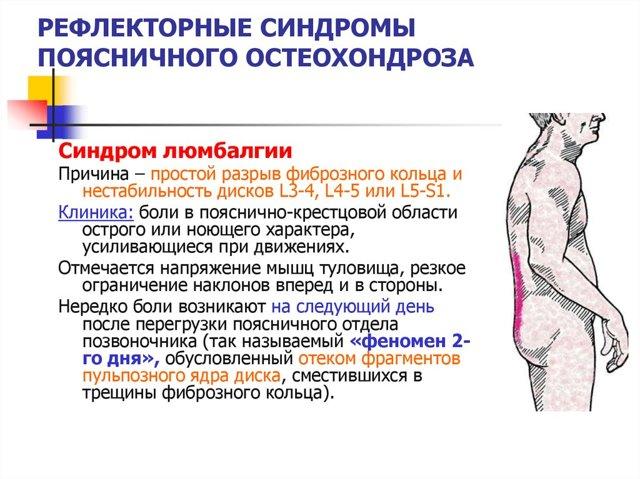 Люмбоишиалгия
