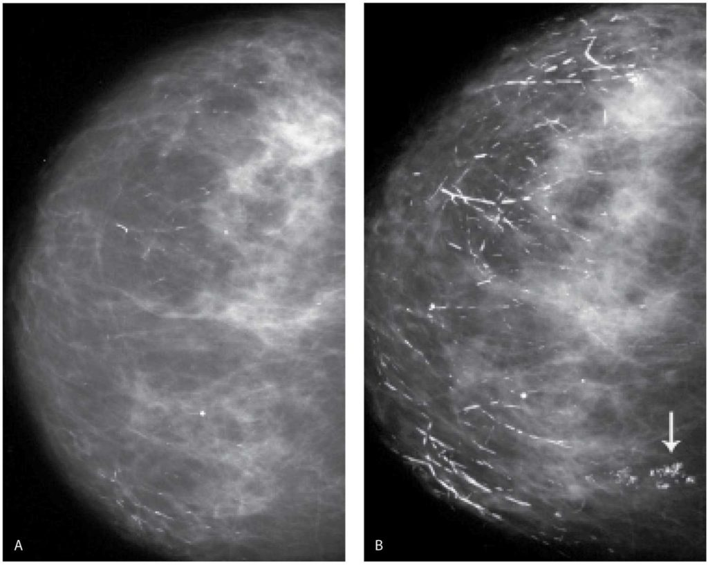 Микрокальцинаты в молочной железе: виды, причины и методы лечения