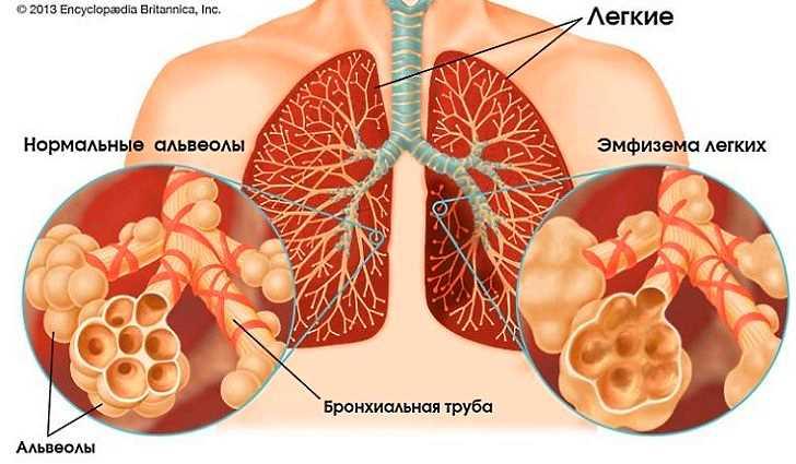 Что такое буллы. чем опасна буллезная эмфизема легких