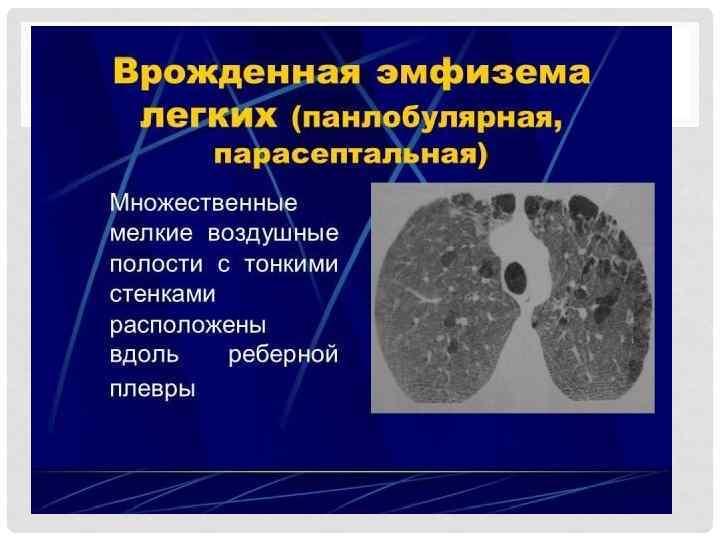 Эмфизема легкого. причины, симптомы, признаки, диагностика и лечение патологии. :: polismed.com