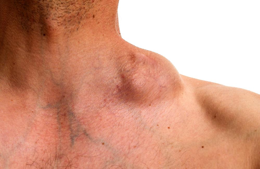 Что такое неходжкинская лимфома и прогнозы от врачей