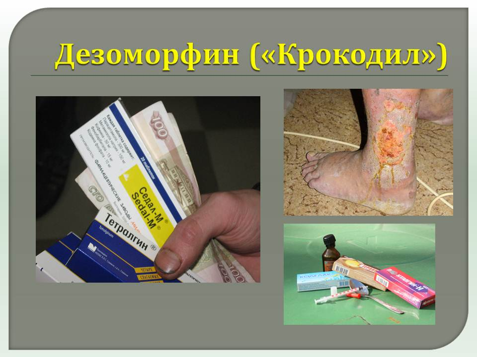 Наркотик скорость: действие на организм, симптомы, зависимость, лечение наркотик скорость: действие на организм, симптомы, зависимость, лечение