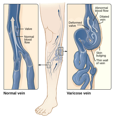 Что такое мезентериальный тромбоз