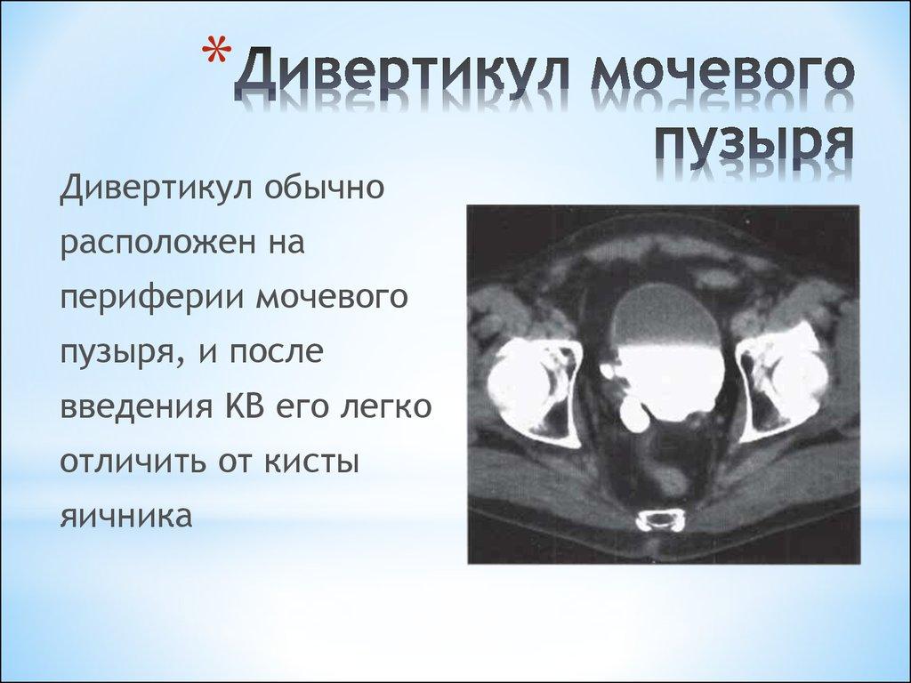 Дивертикул мочевого пузыря: что это такое, симптомы и лечение