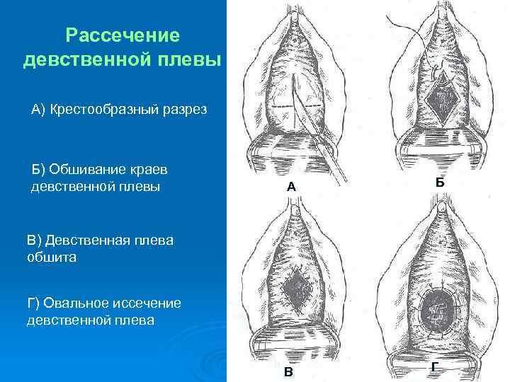 Хирургическая дефлорация: показания к проведению