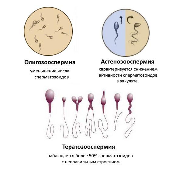 Астенозооспермия: что это такое. причины, симптомы и лечение астенозооспермии |             эко-блог