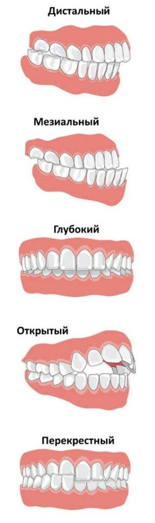 Виды прикуса у детей в стоматологии - описание и фото