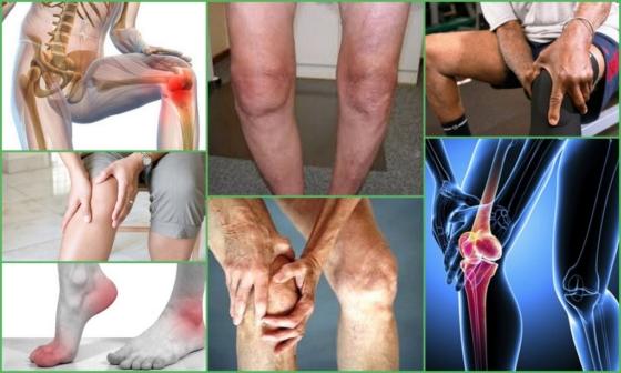Остеоартроз (остеоартрит): что такое, признаки, фото