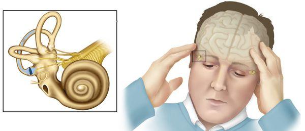 Вестибулярное головокружение: возможные причины, симптомы, проведение диагностических исследований, диагноз, корректировка упражнениями или необходимое лечение