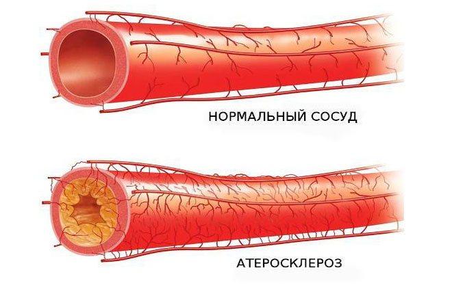 Признаки и способы лечения склероза (уплотнения) аорты