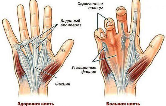 Мышечная контрактура — что это такое, как лечить? почему возникает контрактура в суставах и как с ней бороться?