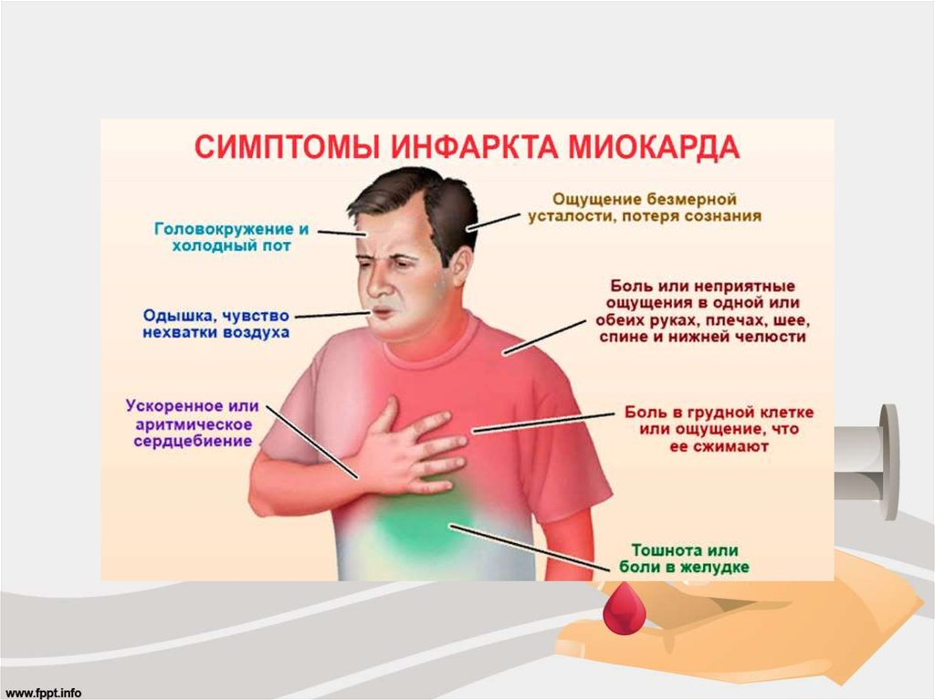 Инфаркт симптомы: 4 первых признака инфаркта у женщин и мужчин