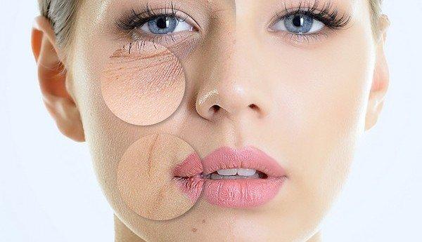 Косметика с ретиноидами