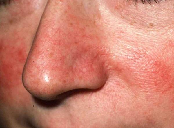 Короста на голове, в носу, на коже - лечение, причины, фото