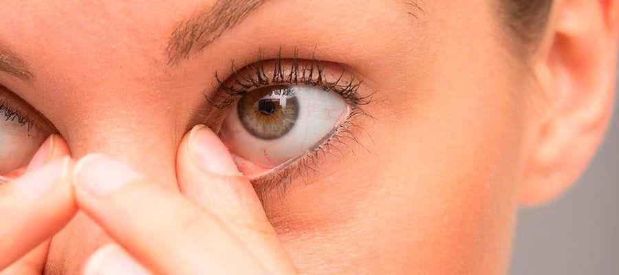 Что такое ячмень на глазу и как его лечить, симптомы ячменя | медицинский портал spacehealth