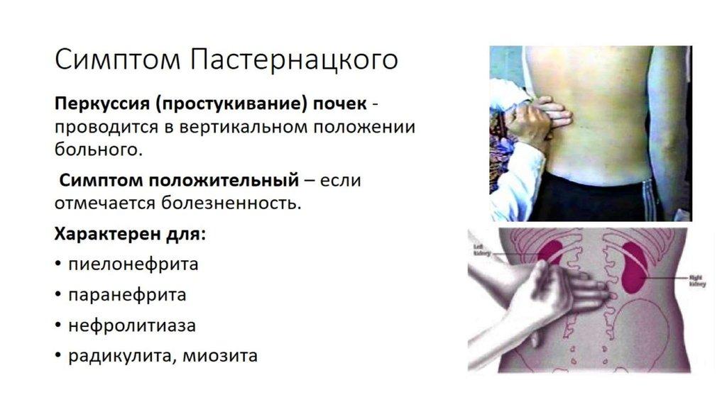 Симптом пастернацкого — liqmed.ru
