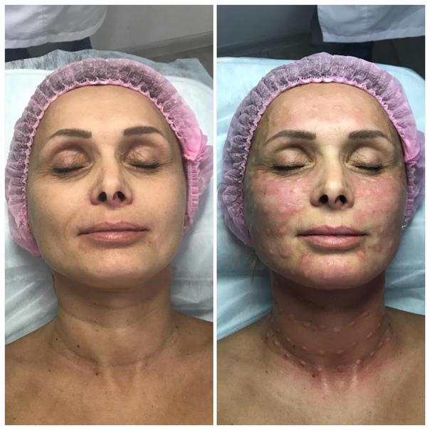 Биоревитализация лица: что это такое, эффект, фото до и после, отзывы - idealplastic.ru