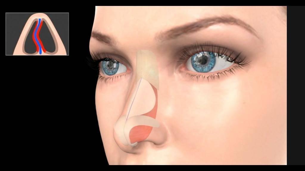 Что такое септопластика: отзывы пациентов, особенности операции на носовой перегородке и реабилитация