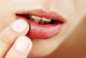 Простуда — описание, симптомы, причины и лечение простуды