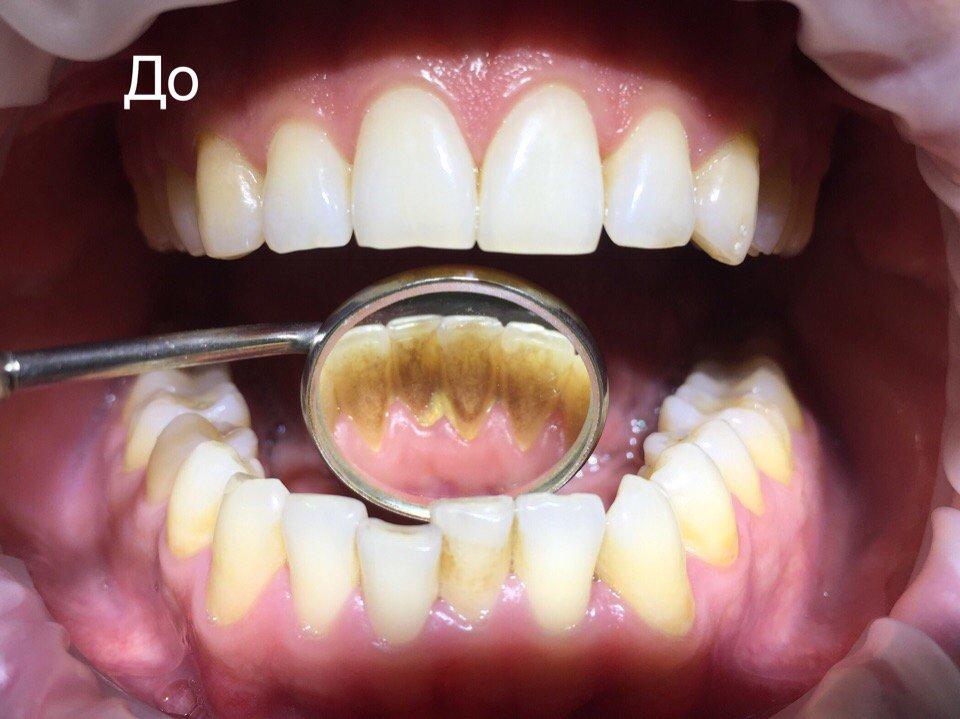 Причины появления и методы избавления от зубного камня на зубах