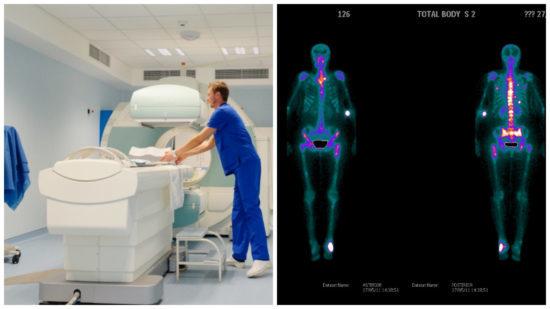 Сцинтиграфия костей скелета: что это такое, подготовка к обследованию