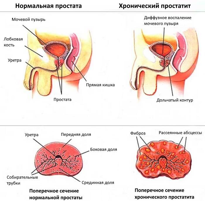 Простатит у мужчин: симптомы, признаки, лечение. чем лечить простатит