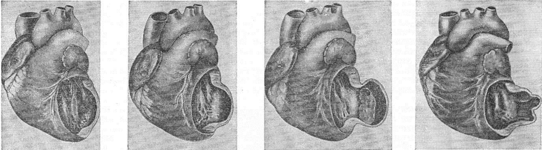 Аневризма сердца: что это такое, симптомы, лечение, прогноз | osostavekrovi.com
