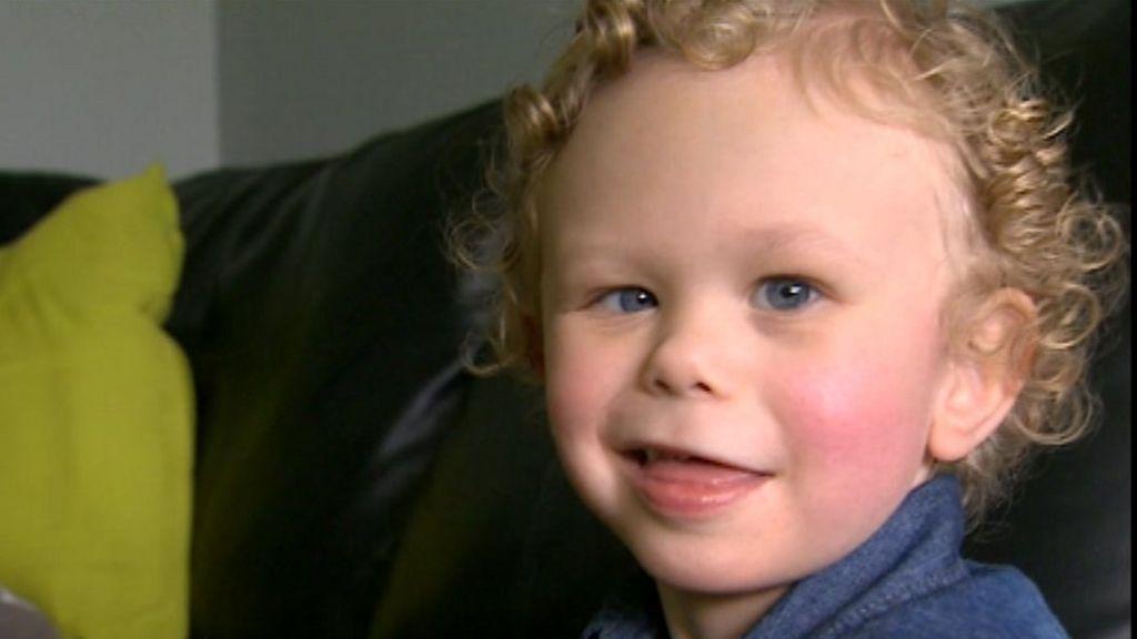 Синдром уильямса или ребенок с лицом эльфа
