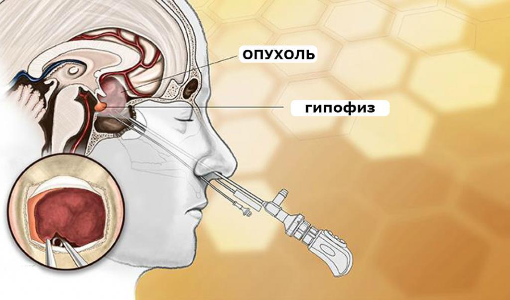 Аденома гипофиза: все формы, лечение и симптомы, прогноз