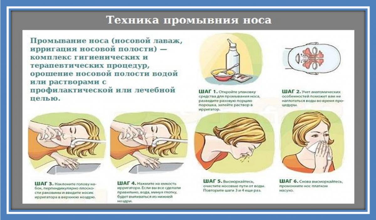 Риновирусная инфекция у детей: симптомы и лечение, что такое риновирус