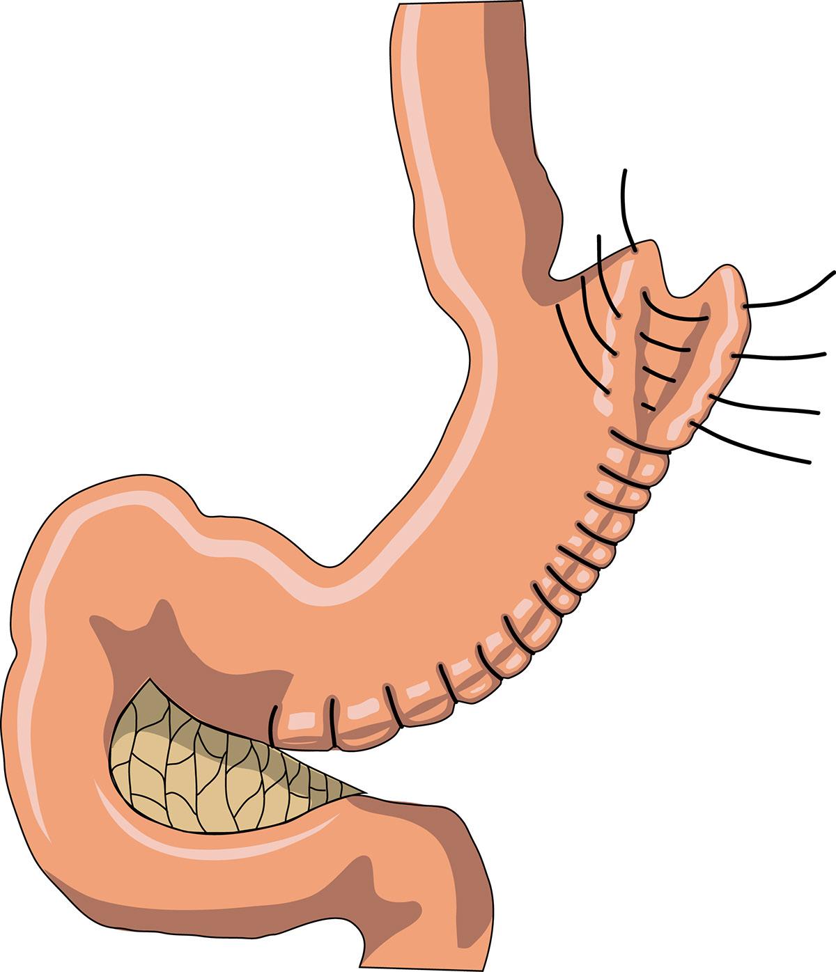 Что такое бариатрическая хирургия?