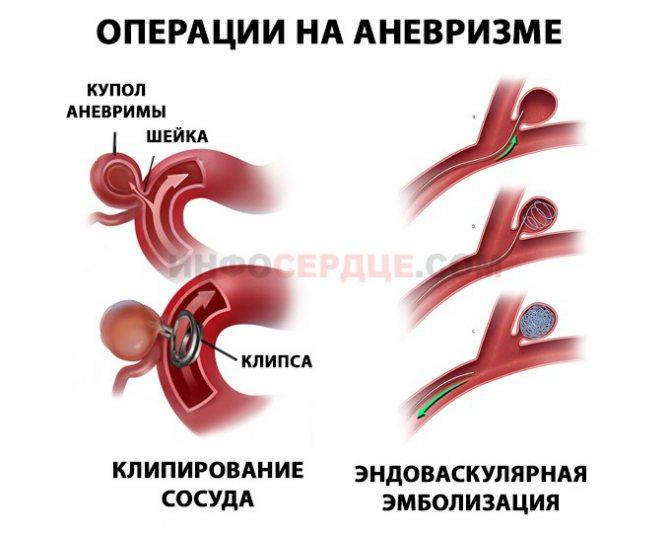 Аневризма головного мозга: что это такое, какими симптомами проявляется, виды, причины возникновения, последствия разрыва, лечение, реабилитация