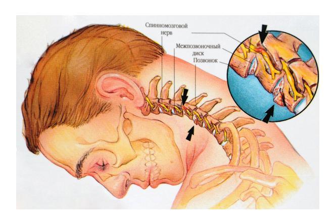 Лечение межреберной невралгии: методы и способы, как лечат невралгию?