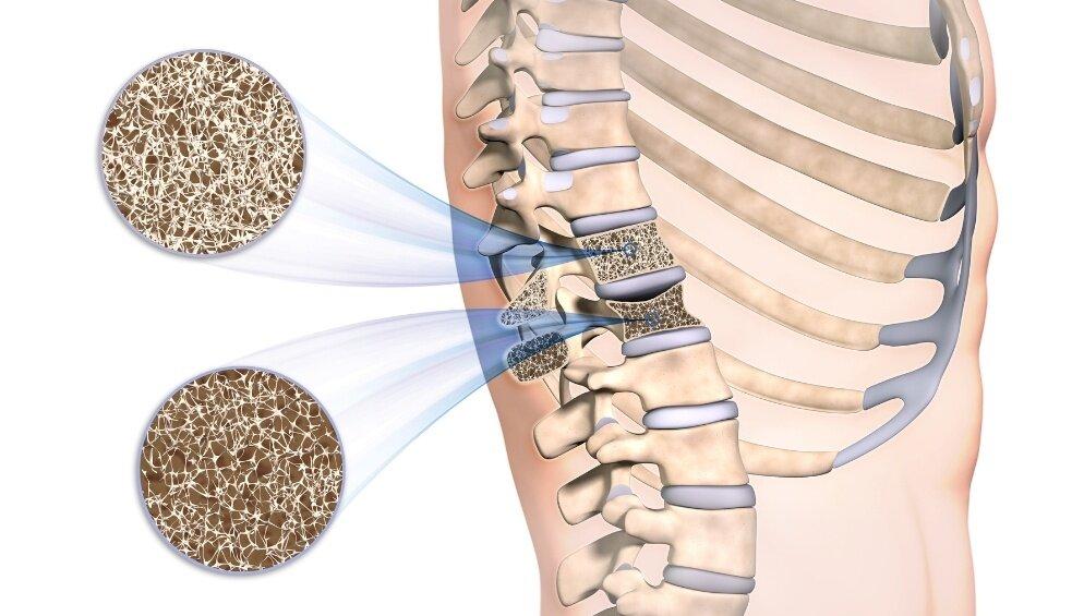 Остеопороз - причины, симптомы и признаки, диагностика и лечение