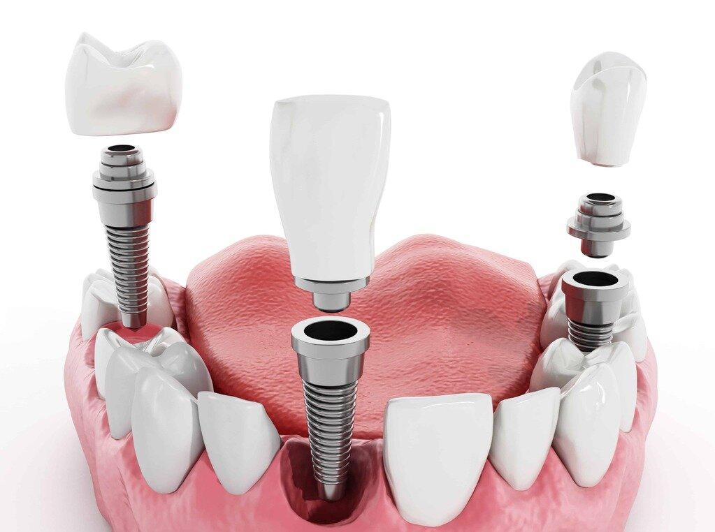 Виды имплантов зубов и методов их установки