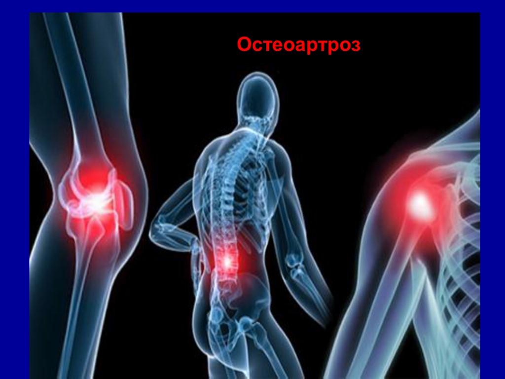 Остеоартрит: причины, виды, симптомы, диагностика и лечение