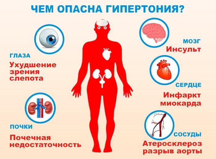 Гипертония - симптомы, причины, лечение в москве у мужчин и женщин