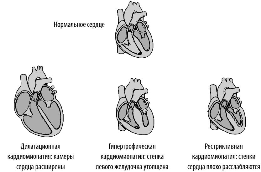 Лечение дилатационной кардиомиопатии   компетентно о здоровье на ilive