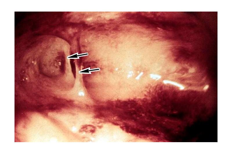 Заболевания фаллопиевых труб как причина бесплодия * клиника диана в санкт-петербурге