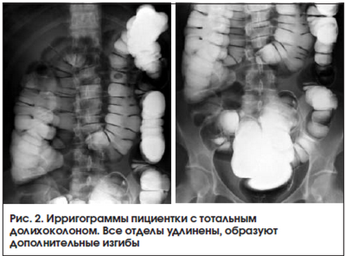 Симптомы и лечение долихосигмы кишечника у взрослых