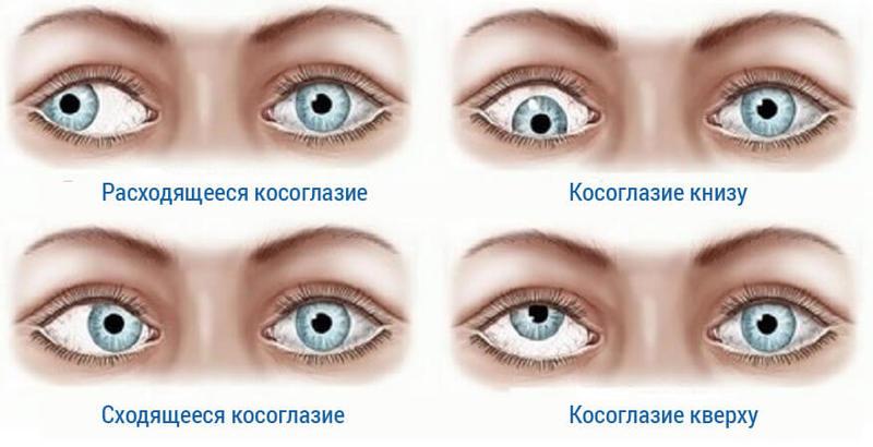 Диплопия: причины, симптомы, лечение. монокулярная и бинокулярная диплопия.