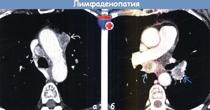 Лимфаденопатия брюшной полости забрюшинная, мезентериальная: что это такое