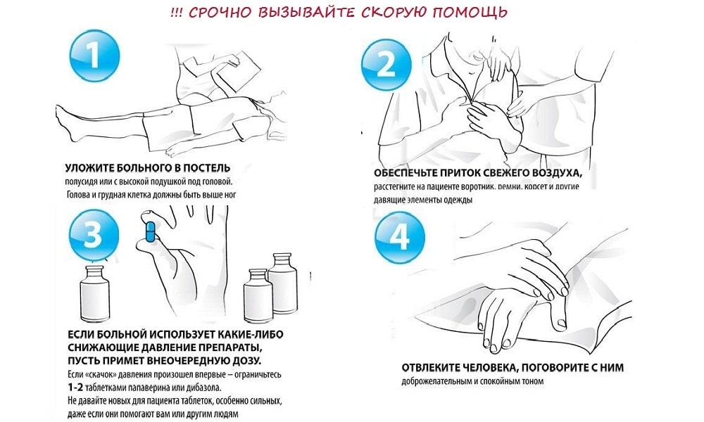 Гипертонический криз - симптомы и неотложная первая помощь в домашних условиях