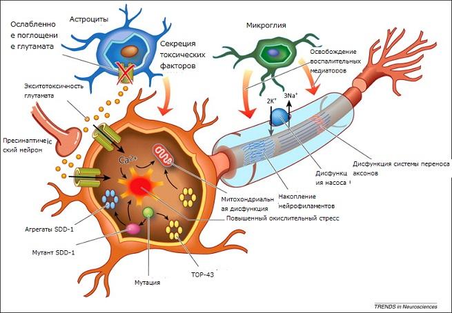 Болезнь бас: причины, симптомы и течение. диагностика и лечение бокового амиотрофического склероза