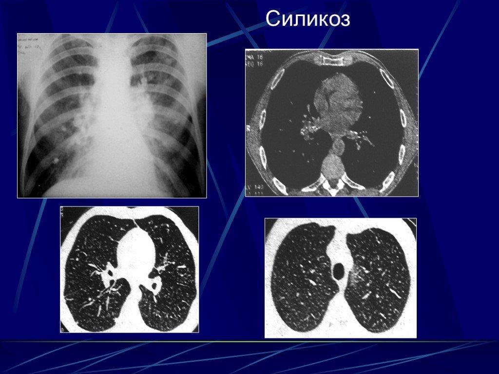 Силикоз лёгких: симптомы, лечение и профилактика болезни - мир здоровья