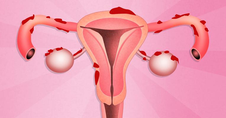 Что такое эндометриоз матки и как он проявляется