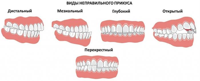 Виды прикуса в стоматологии: физиологические и патологические