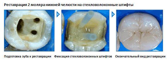 Пломбирование зубов гуттаперчевыми штифтами: минусы и преимущества | rvdku.ru