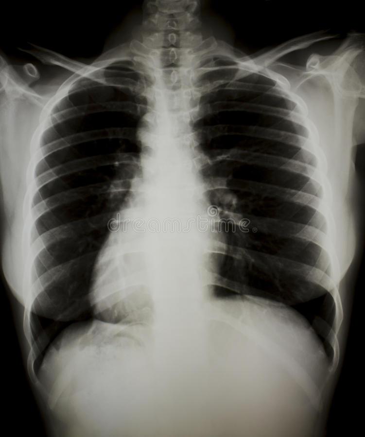 Причины спазмов в грудной клетке посередине, слева и справа