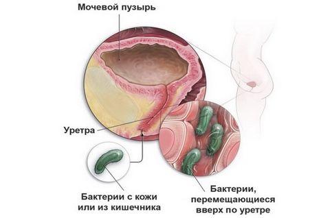 Тур мочевого пузыря: техника проведения и последствия | компетентно о здоровье на ilive